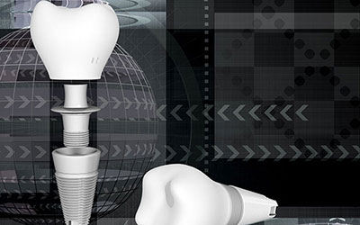Dental Implants Westwood