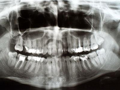 Gum Disease Westwood